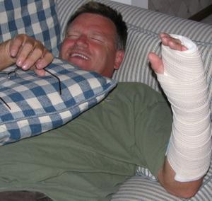 Mike_broken_hand_tp